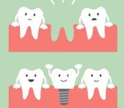 Tooth Implants Cost in Arana Hills- My Gentle Dentist