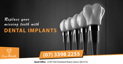 Dental Implant Carina Brisbane - Care 4 Teeth