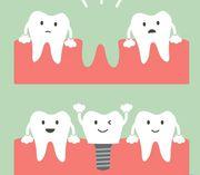Dental Implants Cost Australia- My Gentle Dentist